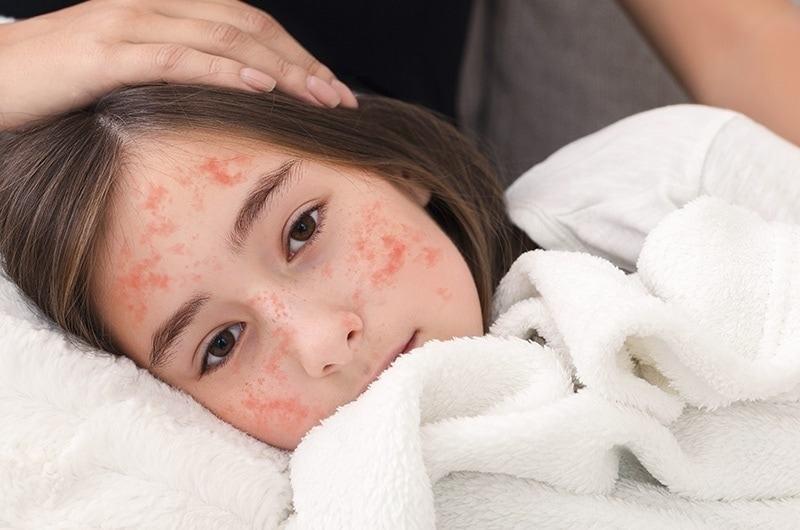 Bệnh sởi không chỉ làm suy yếu, mà còn phá hủy hệ miễn dịch của chúng ta.